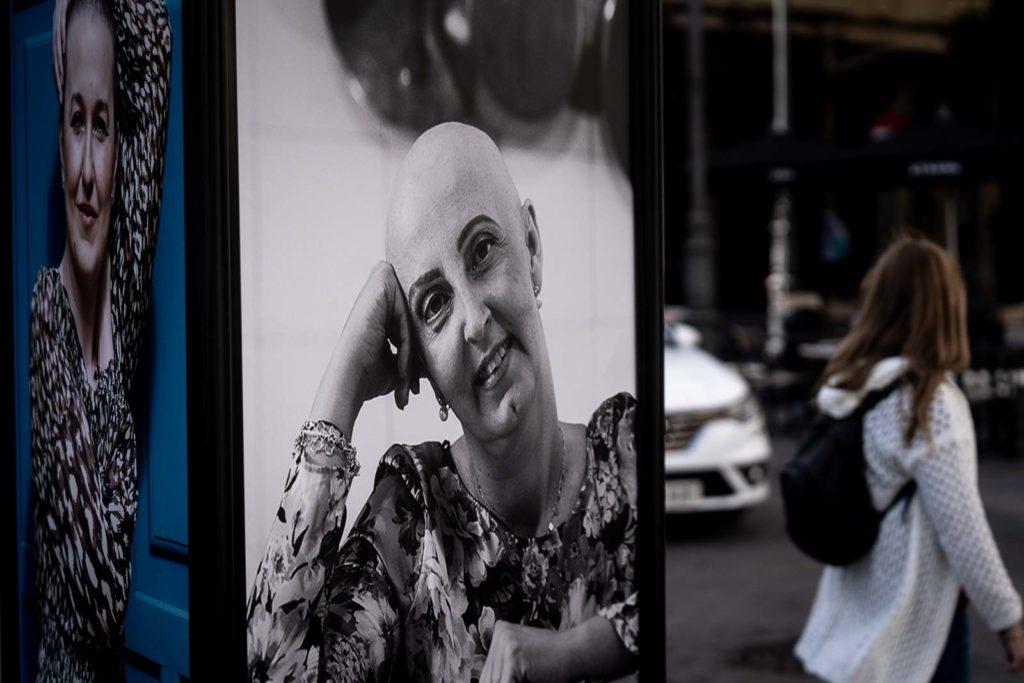 Exposición fotográfica 'Calvas y bellas'